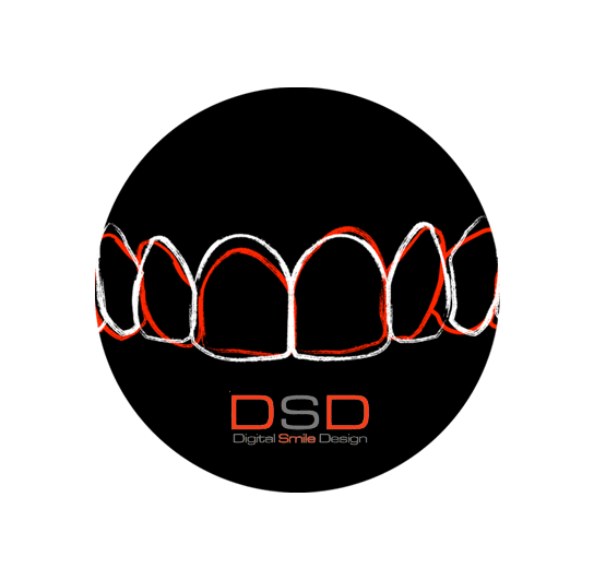 DSD - Digitales Smile Design